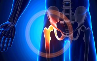 K wie Knochenschwund (Osteoporose)