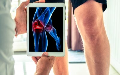 O wie Osteoporose